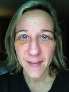 Day 10 after eye surgery